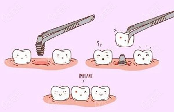 西藏种植牙