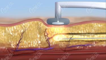 长沙高敏做6D黄金微雕腰腹吸脂过程示意图