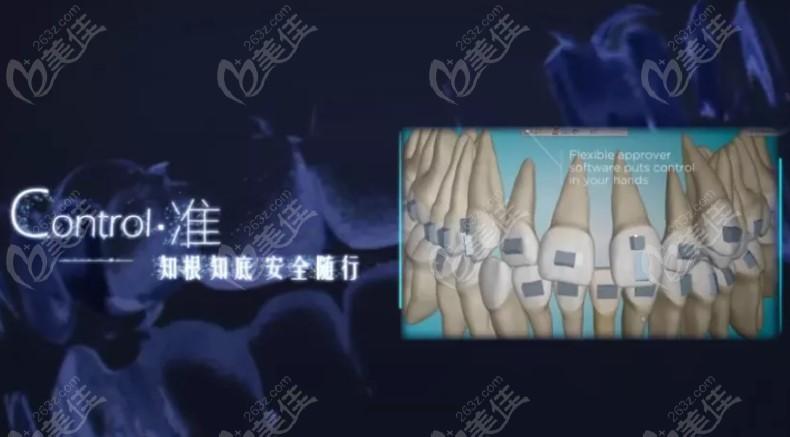 3D影像辅助正畸医生制定清晰的矫正目标位