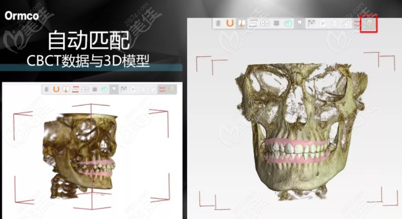 供真实牙根与颌骨的3D影像