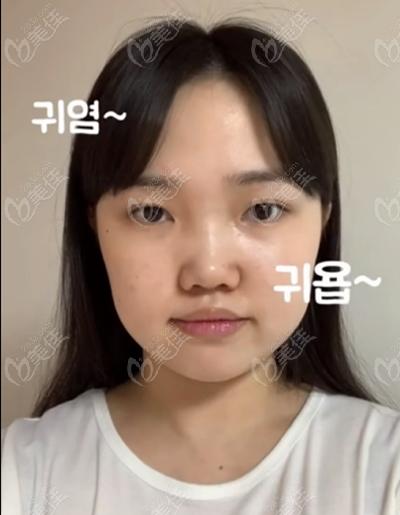 韩国迪美(THE M)整形美容医院李柱洪术前照片1