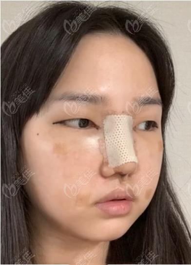 韩国迪美隆鼻+面部吸脂术后第三天