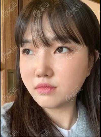 韩国迪美隆鼻+面部吸脂术后第七天