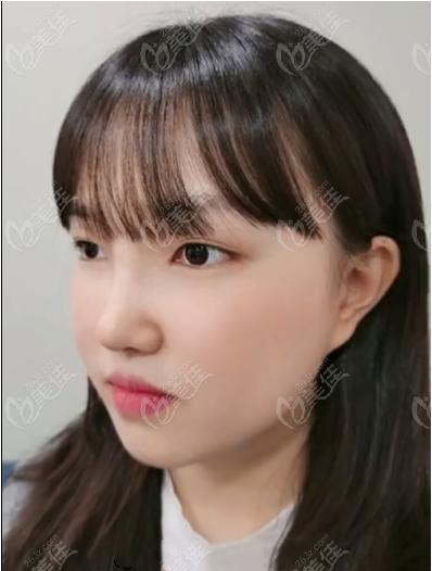 面部吸脂和隆鼻可以一起做吗?来看我在韩国迪美做的隆鼻+面部吸脂恢复图