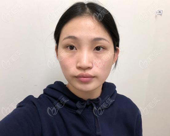 韩国芙莱思整形外科徐原弘术前照片1