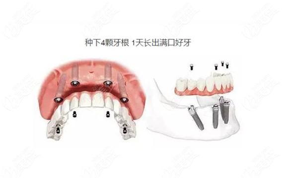 丹东唯美口腔全口种植牙优势