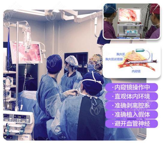 中山医院刘祥厦做胸怎么样