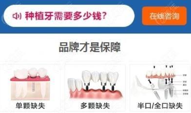 请问芜湖种植牙一颗需要多少钱