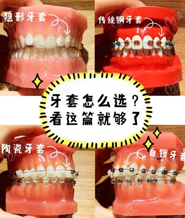 施尔美口腔牙齿矫正