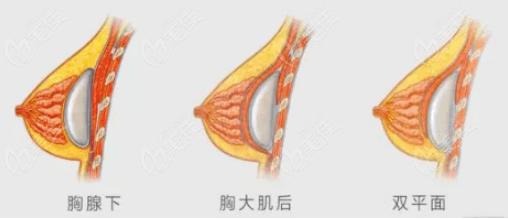 杭州艺星假体隆胸采用双平面技术