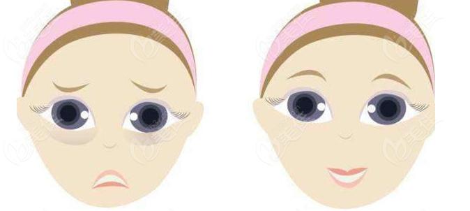 哈尔滨双燕祛眼袋前后对比图