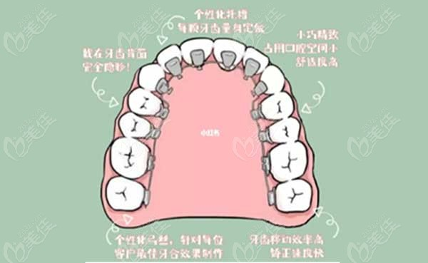 舌侧矫正和隐形矫正的区别