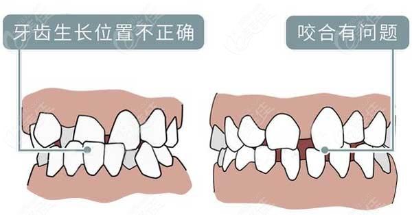揭晓隐形牙套和舌侧矫正哪个更好