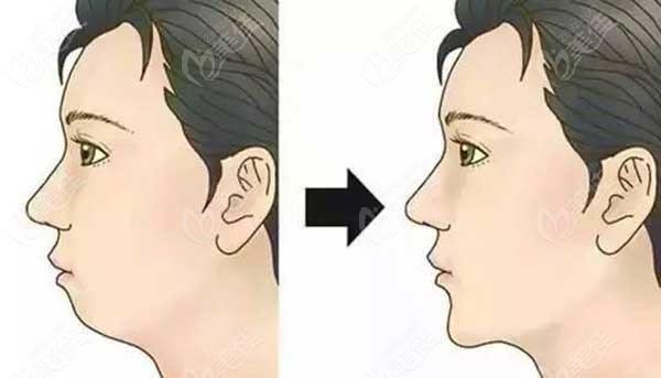 骨性龅牙可以通过牙套矫正