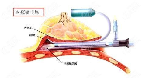 西宁时光做内窥镜隆胸手术