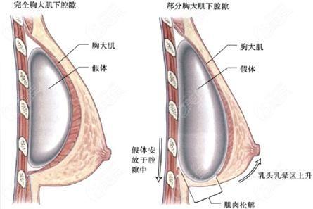 西宁时光做双平面隆胸手术