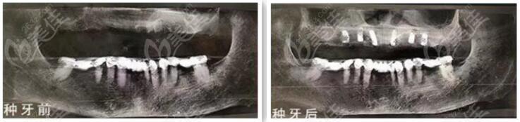 满口种植牙病例前后照片对比图