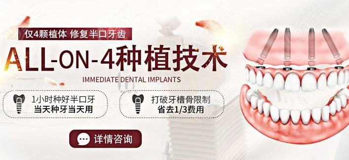 全口即刻种植牙技术靠谱