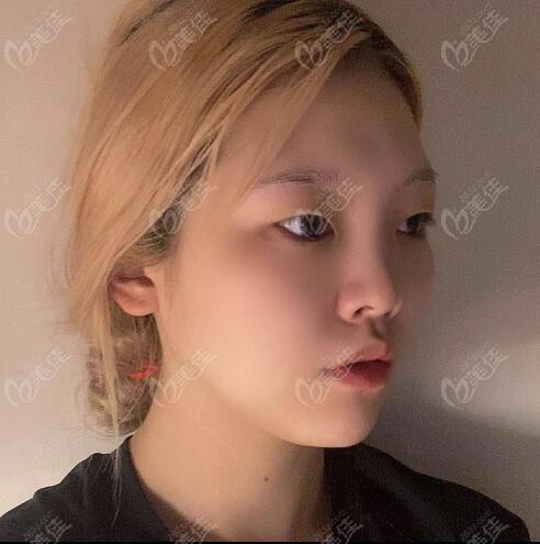 在韩国做眼鼻综合整形术前侧颜照