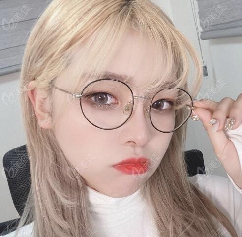 在韩国VG百利酷医院做眼鼻整形术后5个月照