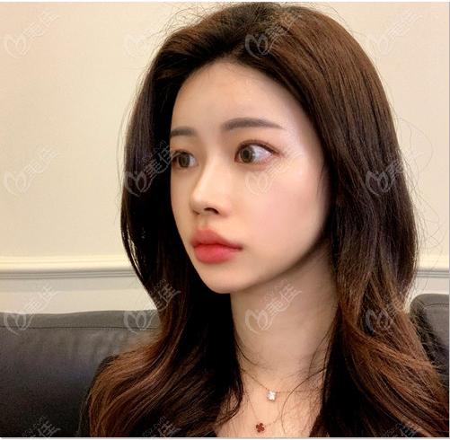 韩国优雅人整形隆鼻术后两周