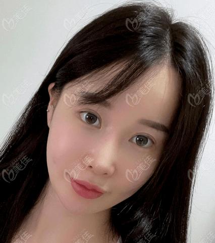 在韩国把眼修复和鼻修复同时做了