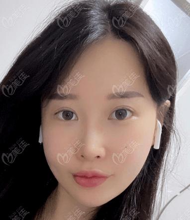 韩国VG百利酷整形外科医院任荣旻术后照片1