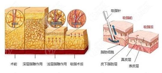包头华美整形做吸脂手术的原理