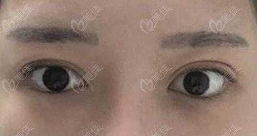 做眼睑下至手术前图片