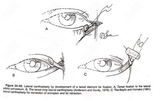 下眼睑下至手术手术过程