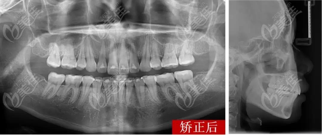 嘉兴牙博士口腔门诊部术后照片1