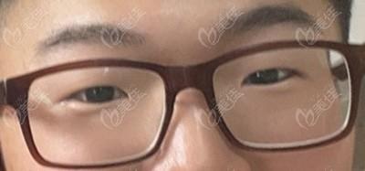 韩国来丽laree整形医院金正一术前照片1