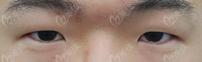 术前肉泡眼内眦赘皮问题明显