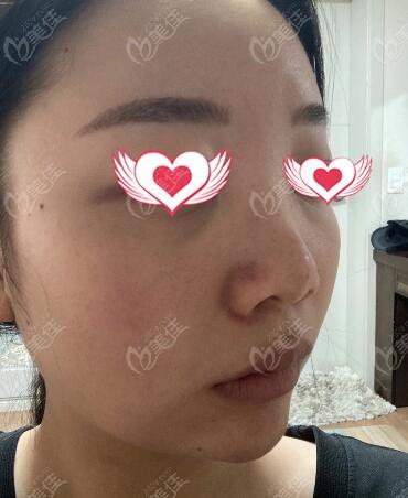 在韩国百利酷整形外科做鼻综合术前侧颜照