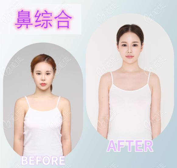 韩国Dr.朵整形外科医院李诚桓术前照片1