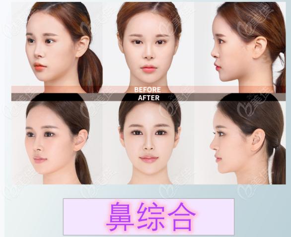韩国DR.朵整形鼻综合术前术后综合对比图