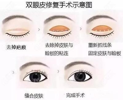 双眼皮修复过程