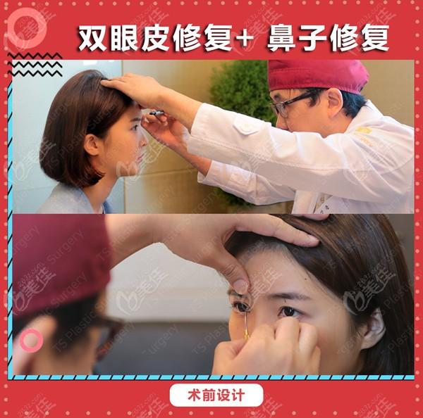 韩国TS整形李相均医生做眼鼻修复的设计