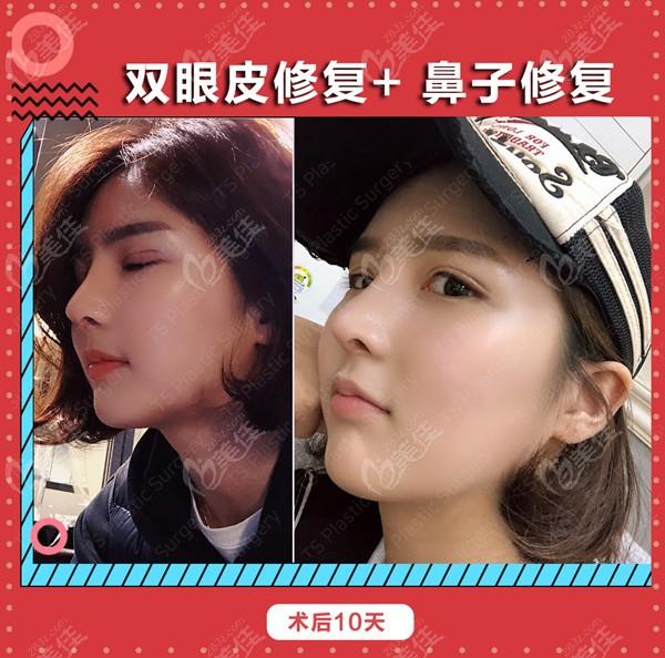 韩国ts整形做眼鼻修复例子