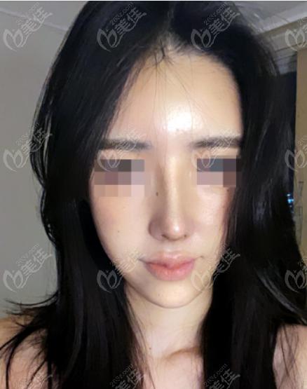 韩国优雅人整形外科朴哲佑术后照片1