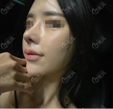 韩国优雅人整形脂肪填充+肋骨鼻修复术后第二周侧面照
