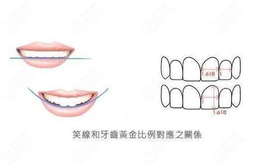 牙齿矫正之美学