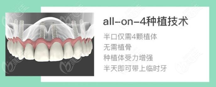 半口全口all-on-4种植牙的优势