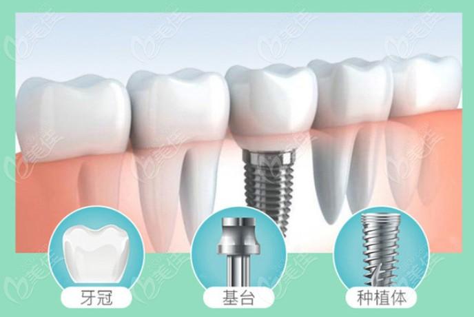 种植牙的组成和构造了解下