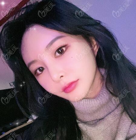 在韩国snow医院做面部吸脂术后一周照