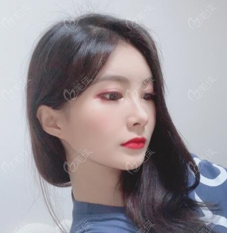 在韩国snow医院做面部吸脂术后1个月照