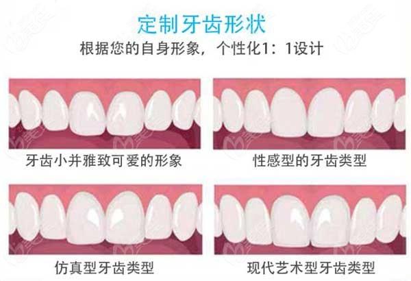 东莞牙博士口腔全瓷牙是什么品牌的