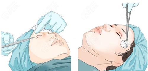 肿眼泡提肌无力做提肌复位修复
