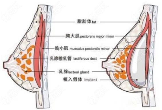 假体隆胸放置层次示意图