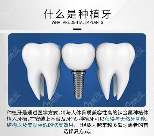 银川艾齿口腔医院种植牙